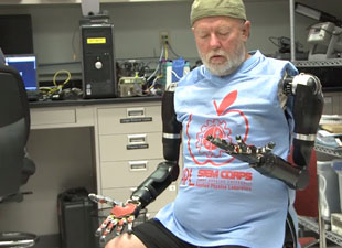 man controls artificial arms wired into his nerves
